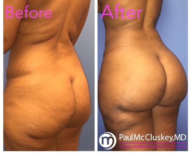 Inner Thigh Liposuction Atlanta | PSIAtlanta