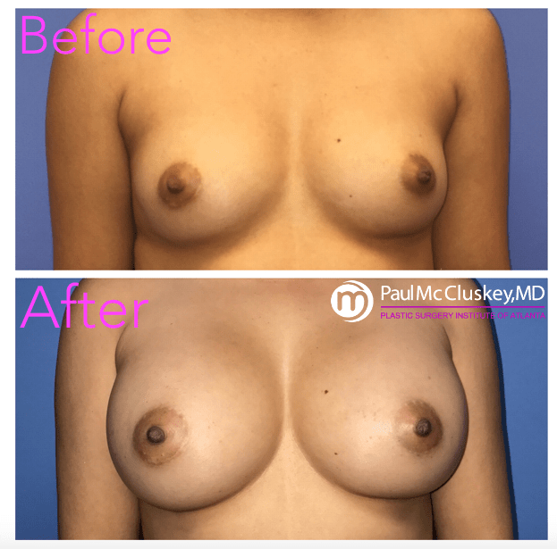 Augmentation roswell breast